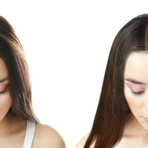 solusi rambut rontok bandung lineation hair revival