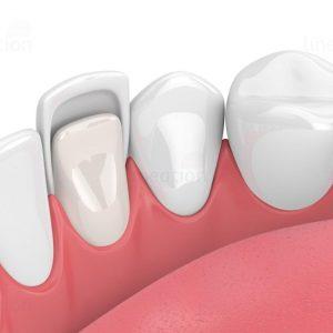 veneer gigi adalah bandung lineation centre
