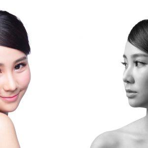 perbedaan botox dan derma filler lineation bandung