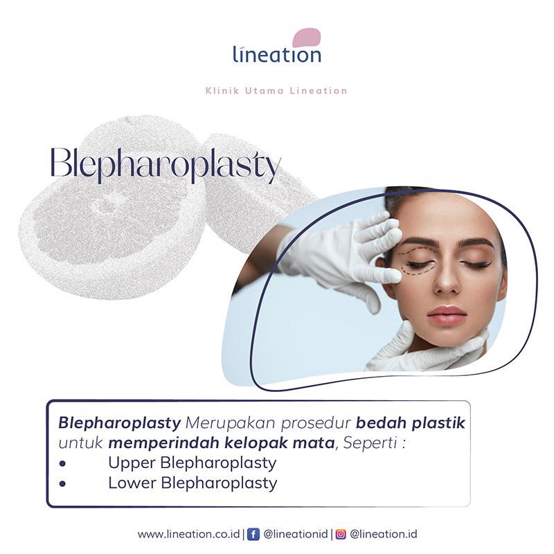 blepharoplasty bedah plastik kelopak mata
