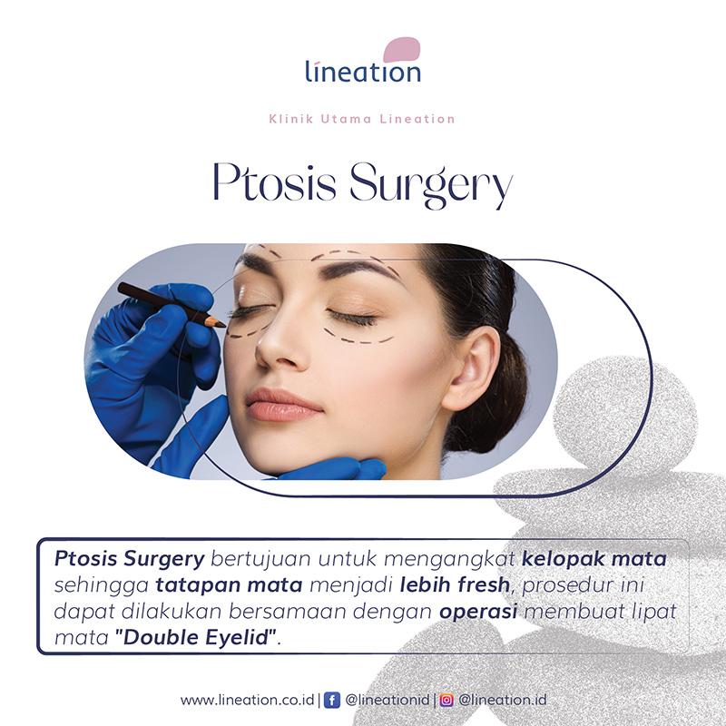 ptosis-surgery