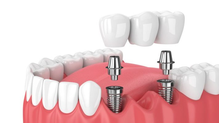 ilustrasi implant gigi